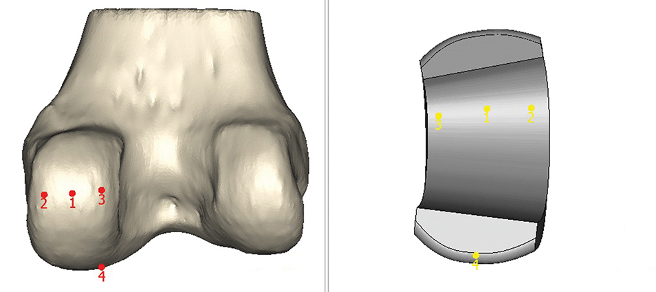Positioning of femoral component on bone
