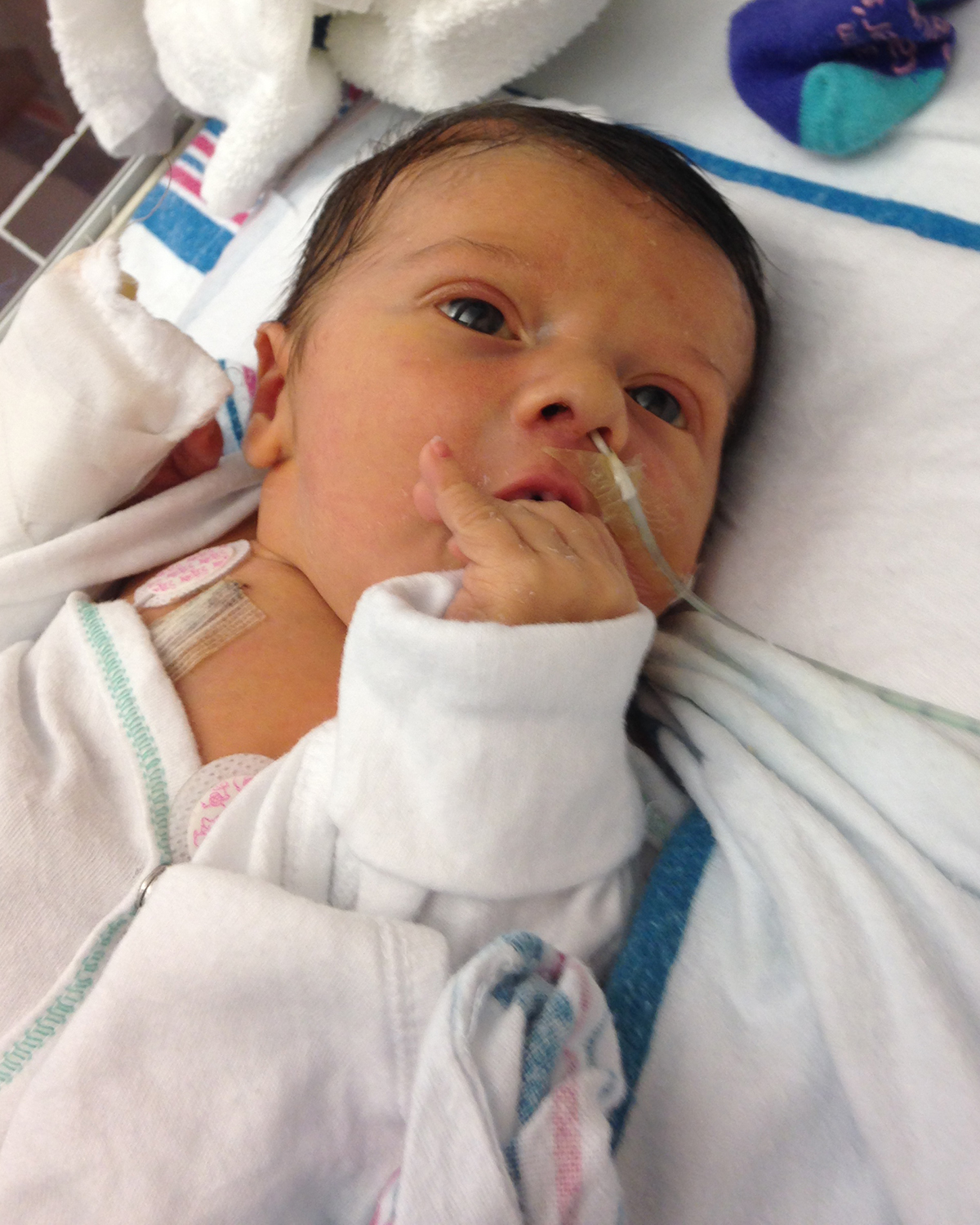 Saving a newborn with the support of 3D Printing | Materialise