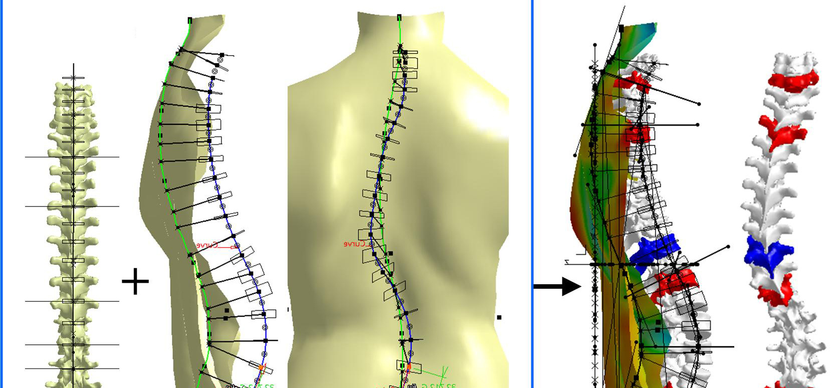3D Patient-Specific Modeling: Innovative Approach for Scoliosis Diagnosis