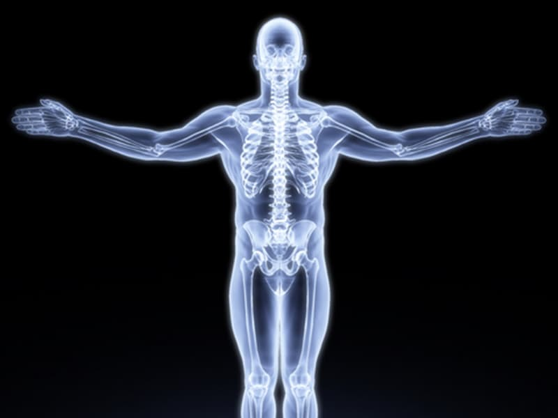 Virtual Patients: A Reality in Orthopedic Implant R&D