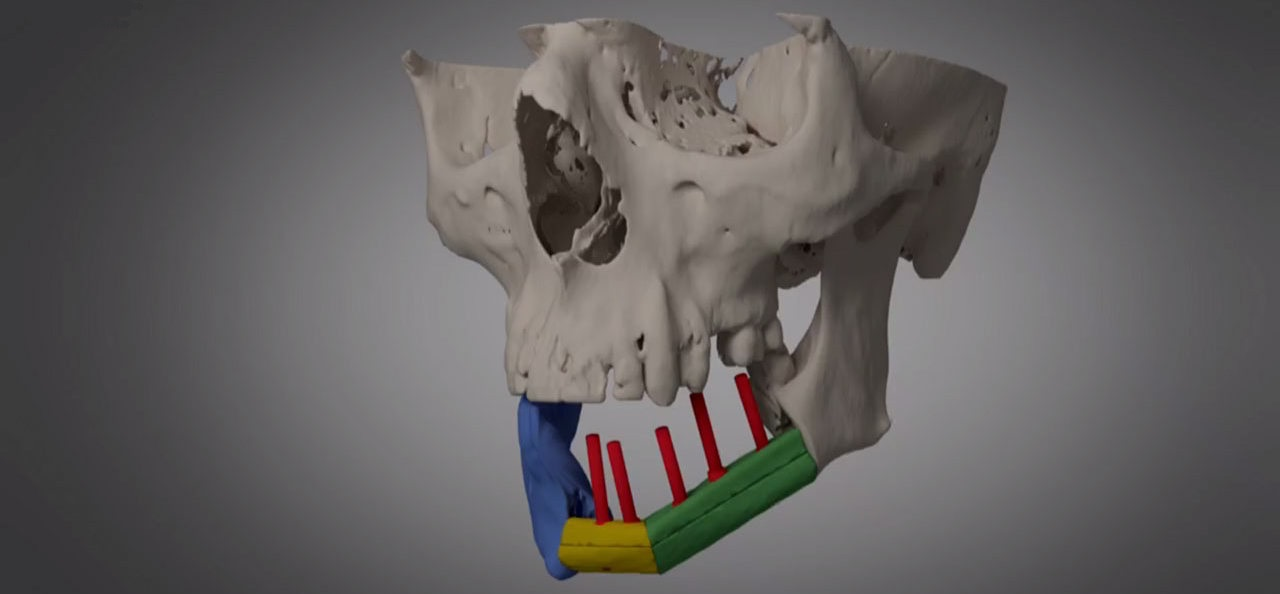 Groundbreaking Surgery for Jaw Reconstruction