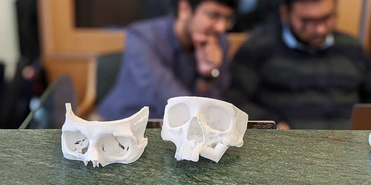 Point-of-Care 3D Printing Lab in India Enables Access to Personalized Treatment