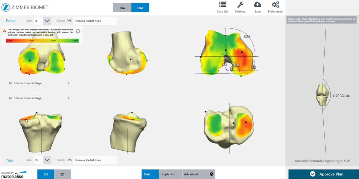 Materialise SurgiCase Knee 3D Planner for the Persona Partial Knee