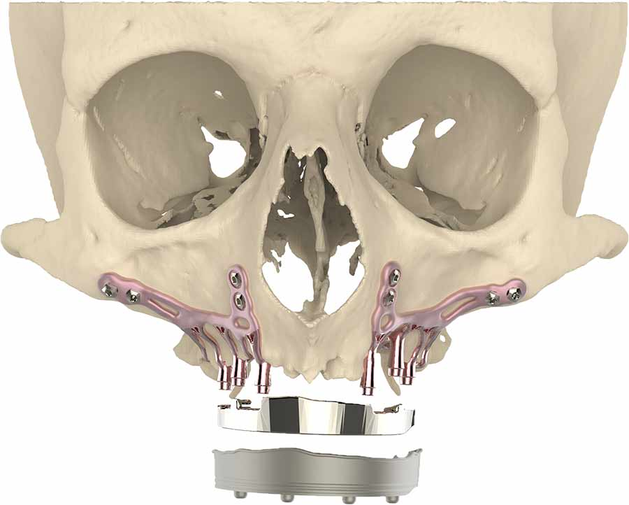 A Revolutionary 3D-Printed Titanium Jaw Implant Takes a Bite out of Surgery  Time