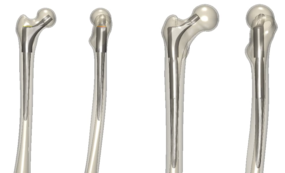 Virtual implantations of the DJO Exprt revision hip implant in the 5th percentile synthetic patient (left) and the 99.7th percentile synthetic patient (right)