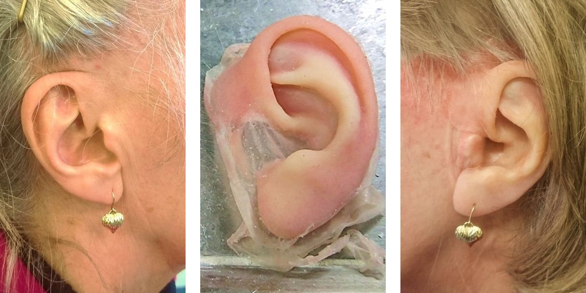 3D-printed ear prostheses