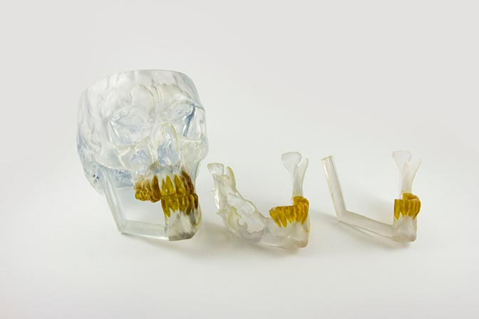 3D skull model – SLA 3D Printing technology