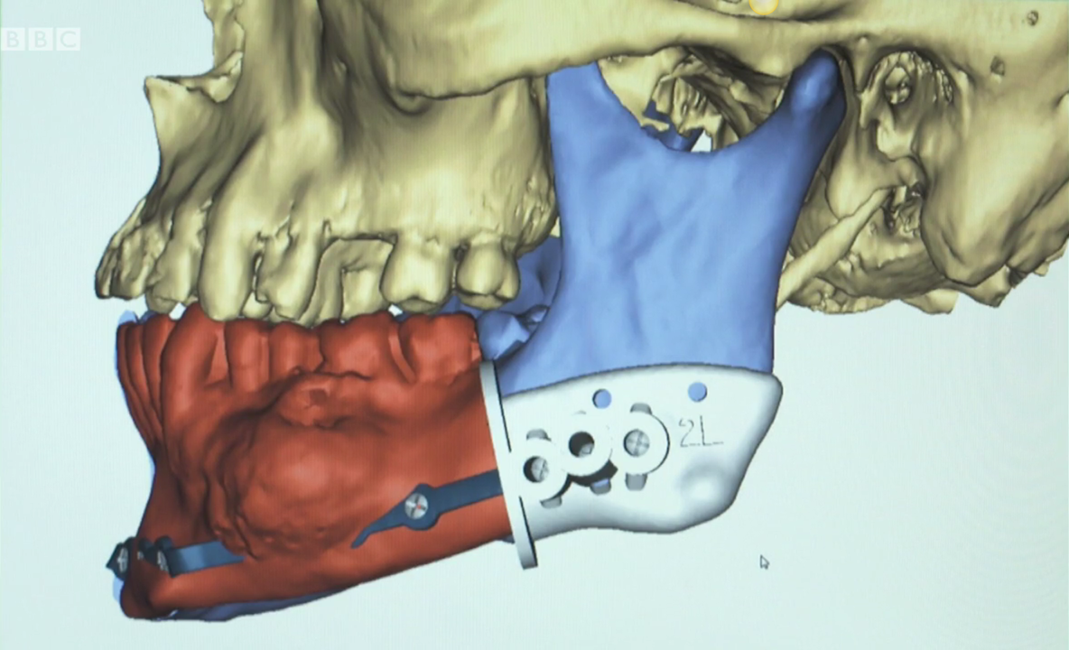 Planning jaw reconstruction in 3D