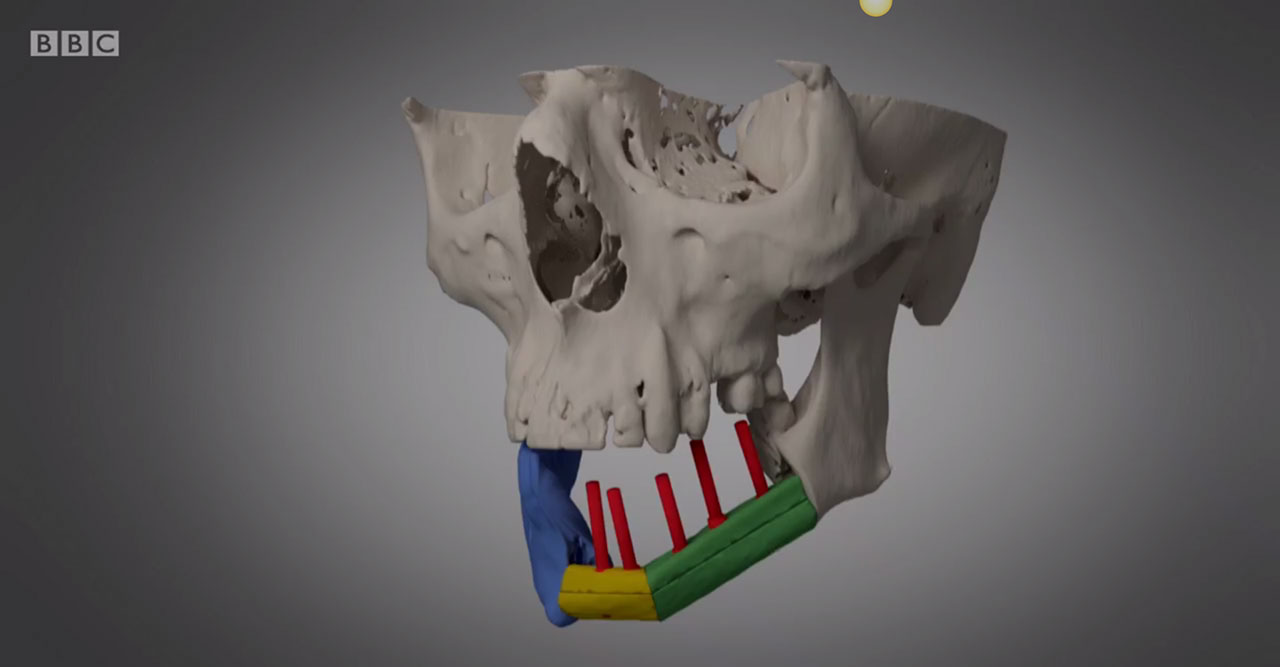 Jaw reconstruction in 3D