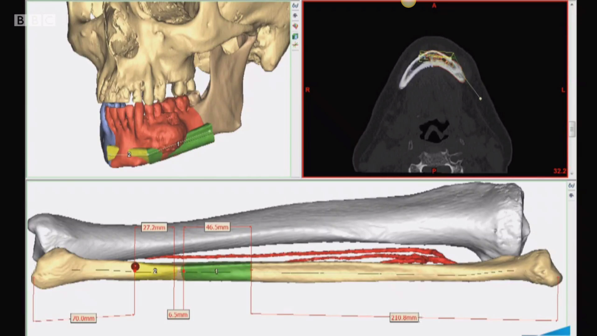 Visualization of jaw reconstruction