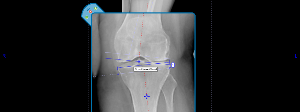 Why You Should Be Planning Knee Procedures Digitally