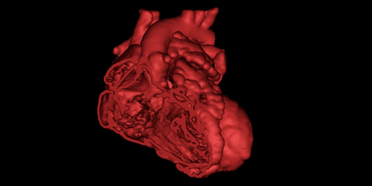 3D Patient-SpecificPersonalized Prediction: novel approach for complex congenital heart disease prognosis