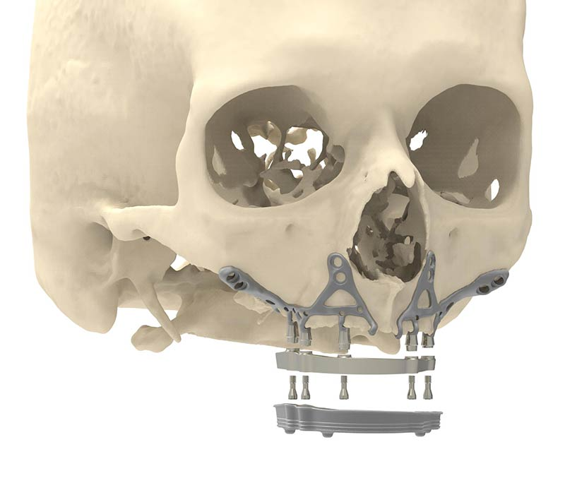 A Revolutionary 3D-Printed Titanium Jaw Implant Takes A