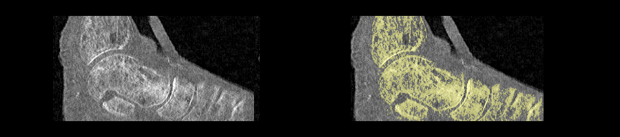Left: Scan of foot (poor quality); Right: After thresholding, a lot of editing is necessary to separate the bones