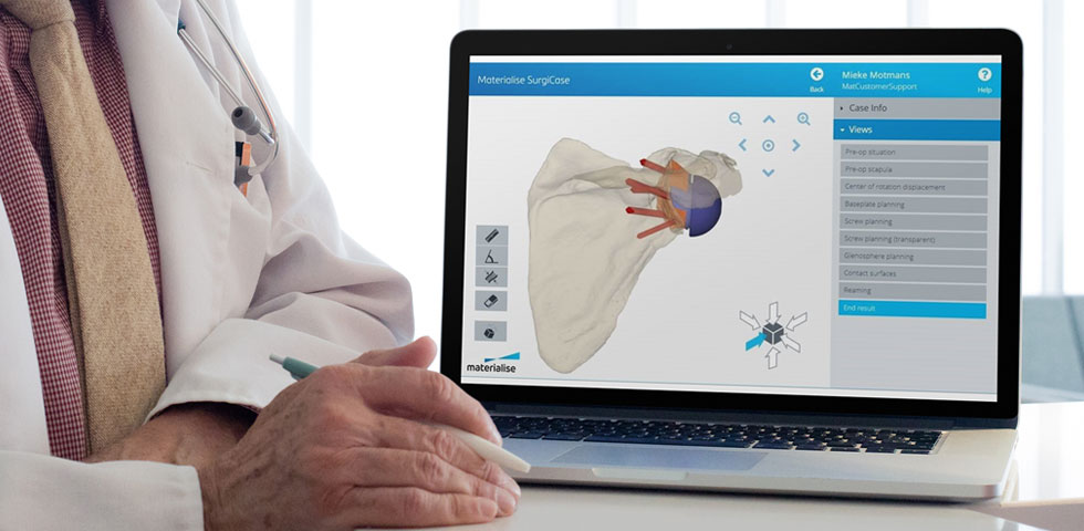 Why Preoperative 3D Planning Tools Will Replace Conventional Imaging Tools