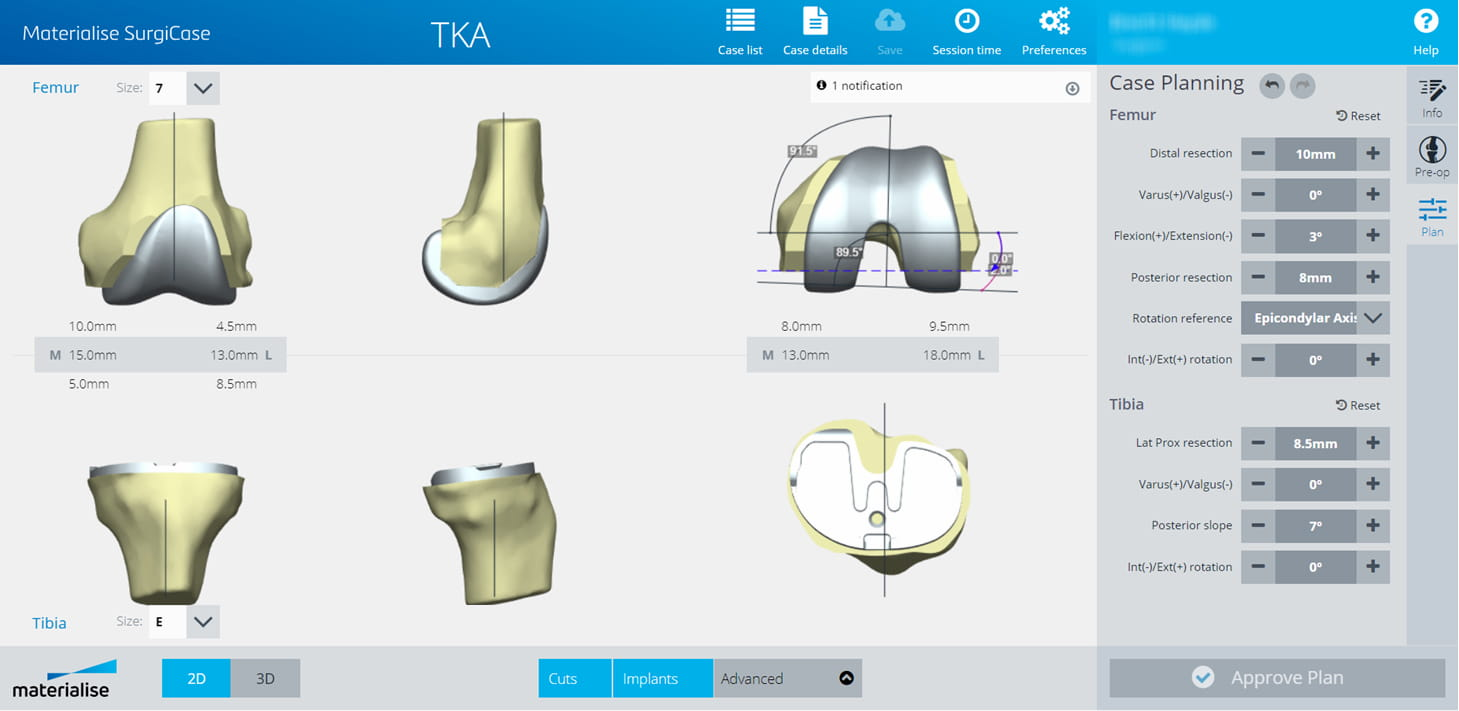 Figure 2: SurgiCase 3D patient-specific pre-operative planning software. Demonstrating how the surgeons can modify the implant degrees-of-freedom.