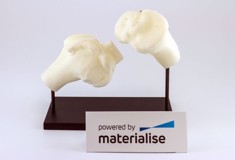 Surgical knee guides 3D printed by Materialise