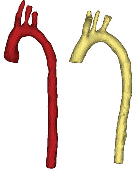 3D models of (l) in vivo scan, and (r) cast, from the same animal