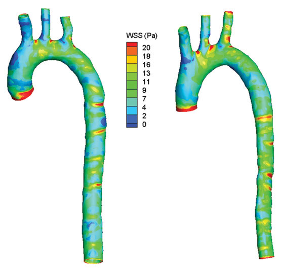 Comparison of Wall Shear Stress between (l) in vivo scan and (r) cast.