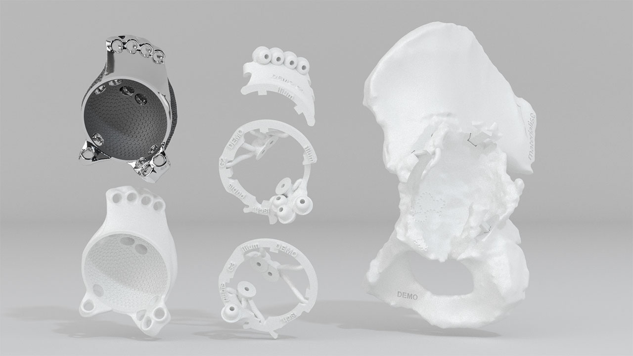 Set with model of the patient-specific hip implant that was used for this patient