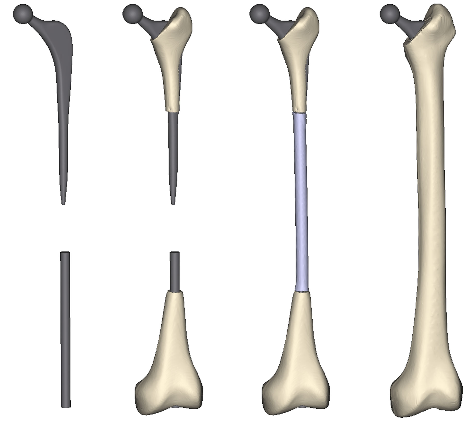Fig. 3 - Masks – Prosthesis, trabecular bone, cortical bone and  intramedullary space