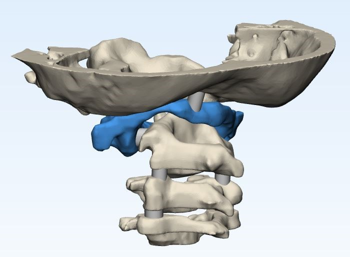 Render of the anatomical model of Jalanea's spine and skull