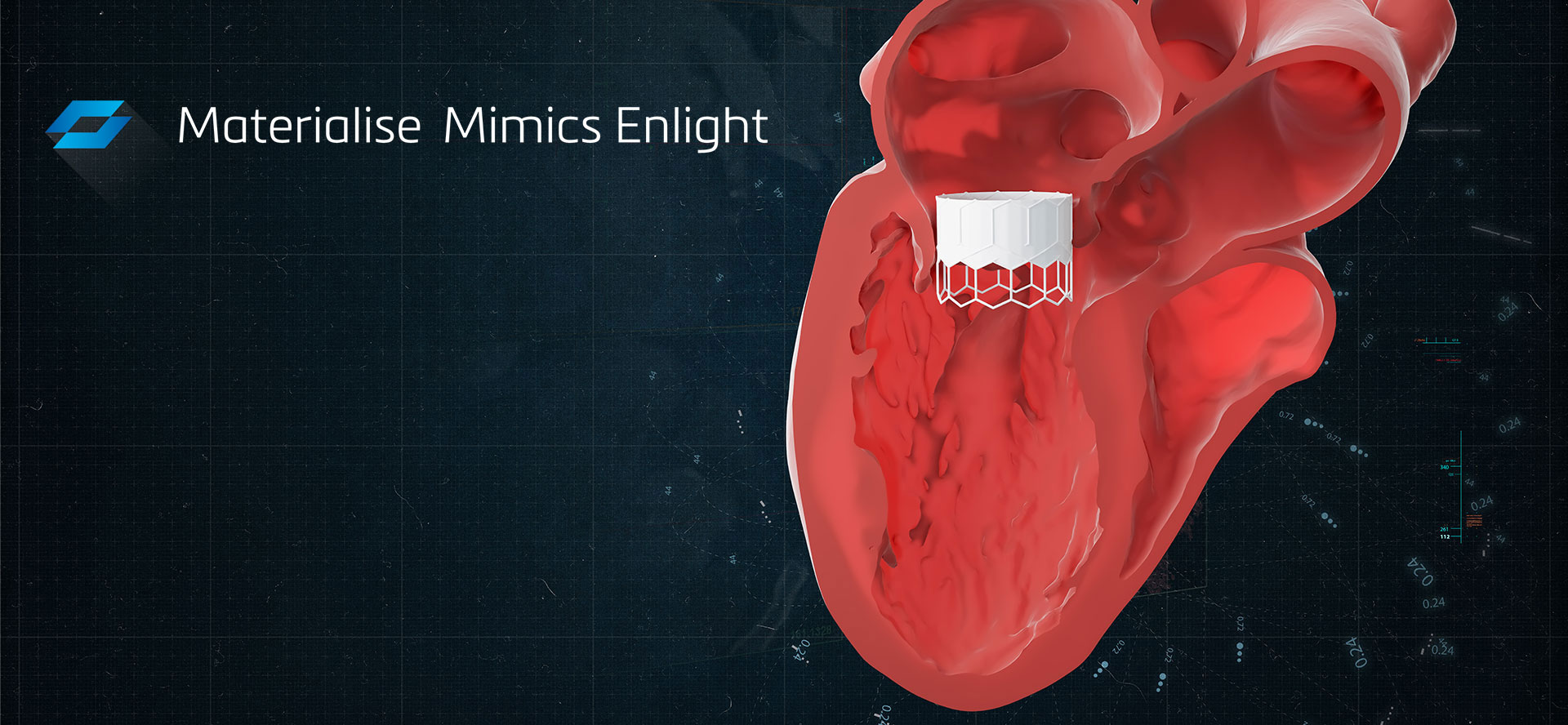 Materialise Mimics Enlight TMVR 3D Planning software