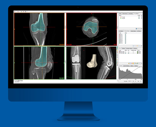 3d medical image processing software
