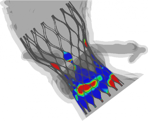 Patient-Based Cardiovascular Device Simulations: From Bench to Bed