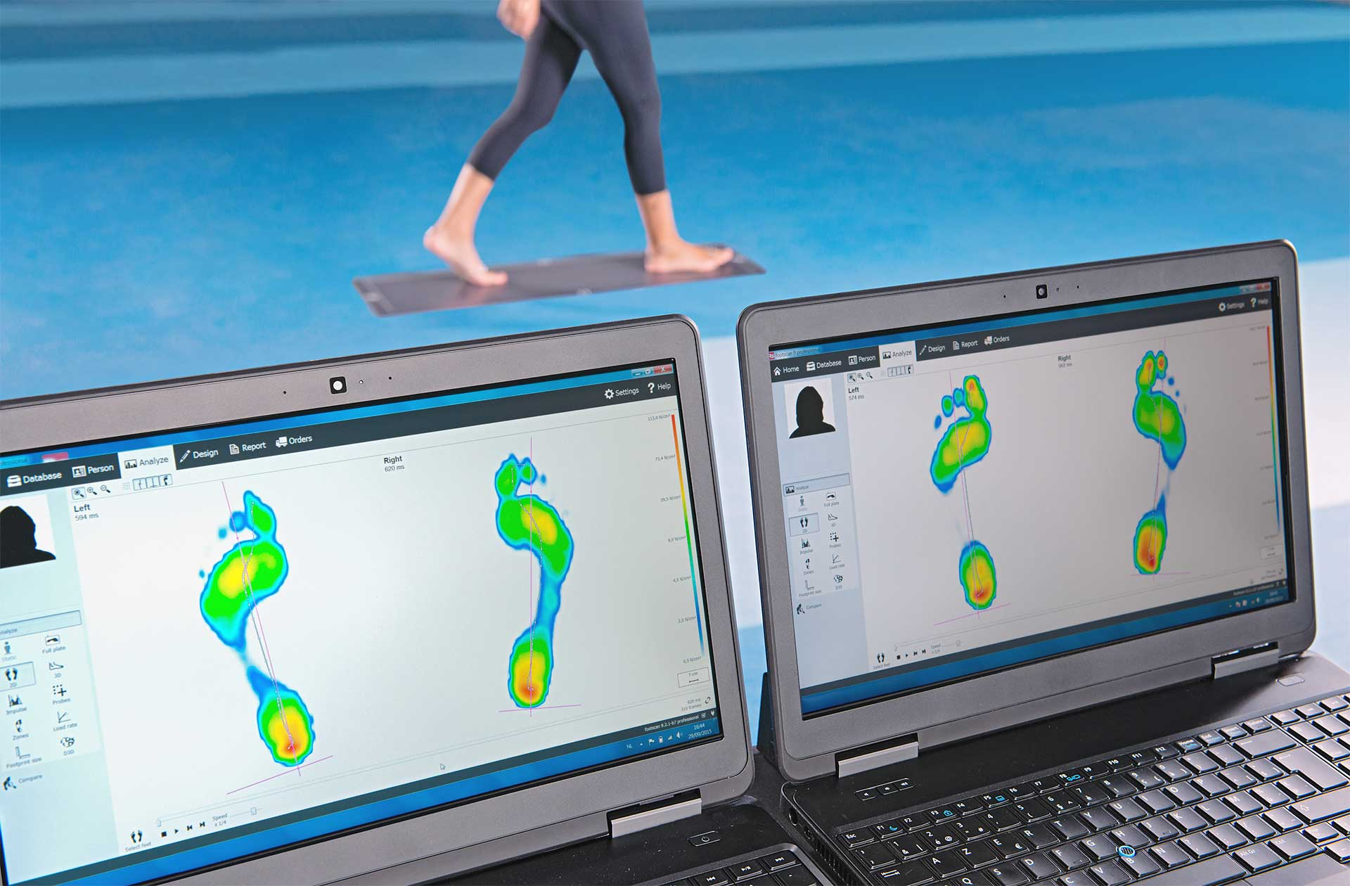 Elevate your biomechanical research with the Materialise footscan® Suite