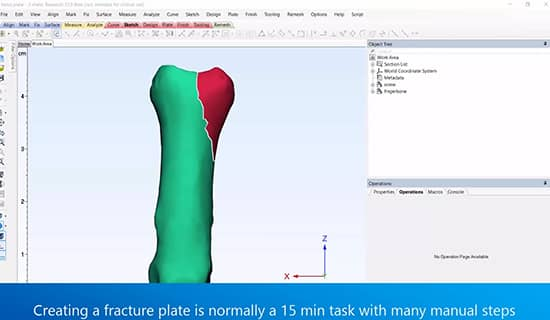 How to Automate a Fracture Plate Design Workflow with Scripting