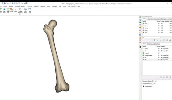 How to plan a knee surgery in Materialise Mimics