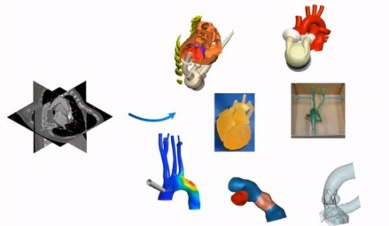 Application of Modelling and Simulation in Cardiovascular Engineering