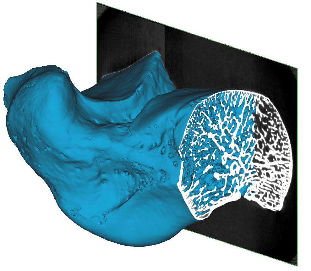 Converting a micro-CT scan of trabecular bone into a high quality FEA mesh