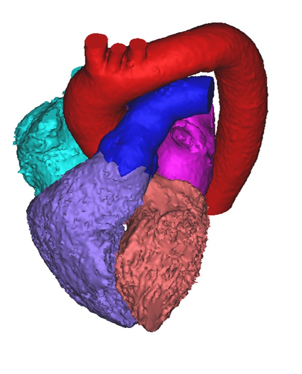 heart segmentation result