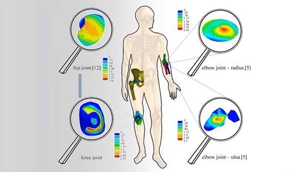 Advancing FEA design through patient-based motion analysis