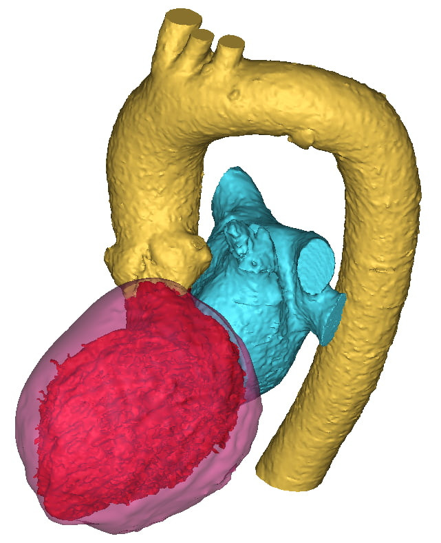 Heart Segmentation: Left Heart and Myocardium