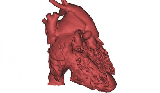3D-Printed Congenital Heart Defect Models for Pre-Surgical Planning