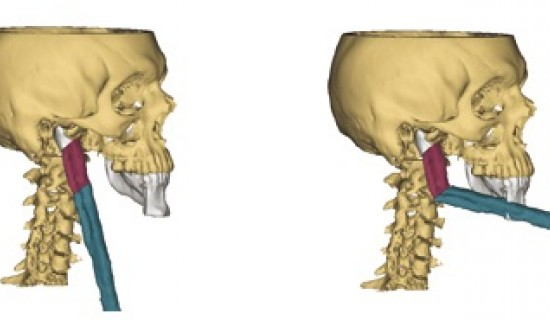 Surgical Planning Software Plays a Key Role in Mandible Reconstruction