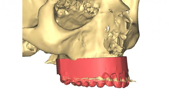 Enhance-your-plan-with-dental-cast-or-graft-site-scans-as-well-as-facial-pictures
