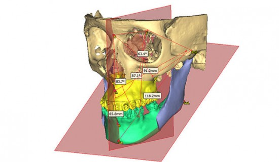 Perform-accurate-3D-cephalometric-analyses