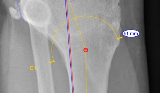 Planning a total knee replacement & tibial osteotomy to replace & realign the knee joint