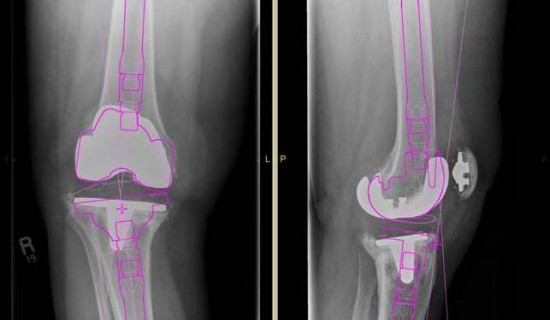 Time saved in the OR by identifying the right components for knee revision in advance