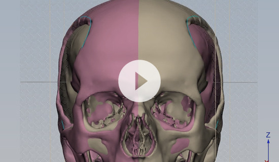 How to design a patient-specific cranial plate