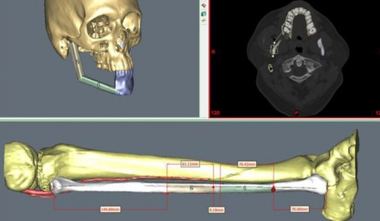 Virtual simulation of the skeletal osteotomies and reconstruction