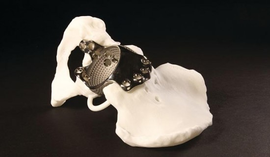 3D Printed Patient-Specific Implants