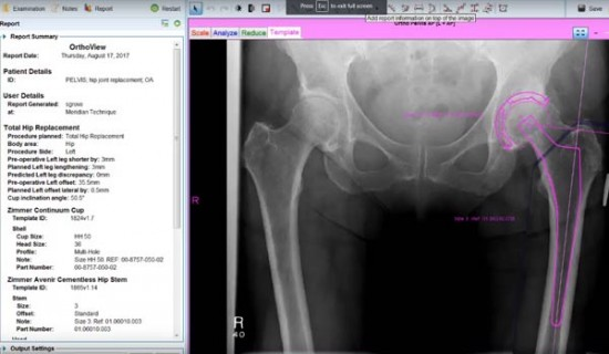 Total Hip Arthroplasty Planning in Orthoview 7.0