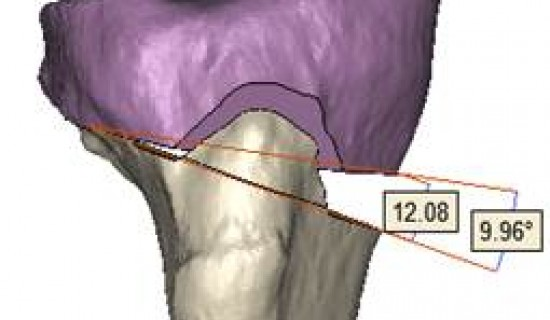 Delaying Total Knee Replacement Surgery with Innovative 3D Solutions