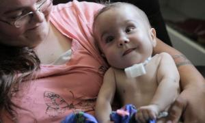 Baby's Life Saved with 3D Printed Device