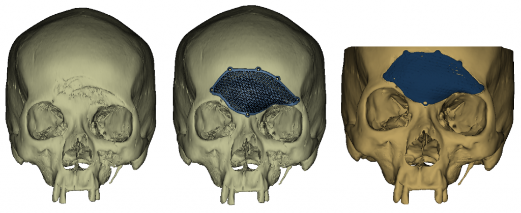 Left to right : Patient's skull pre-surgery; Pre-operative simulation with OBL implant; Post-operative 3D reconstruction, showed exact fits of the implant.